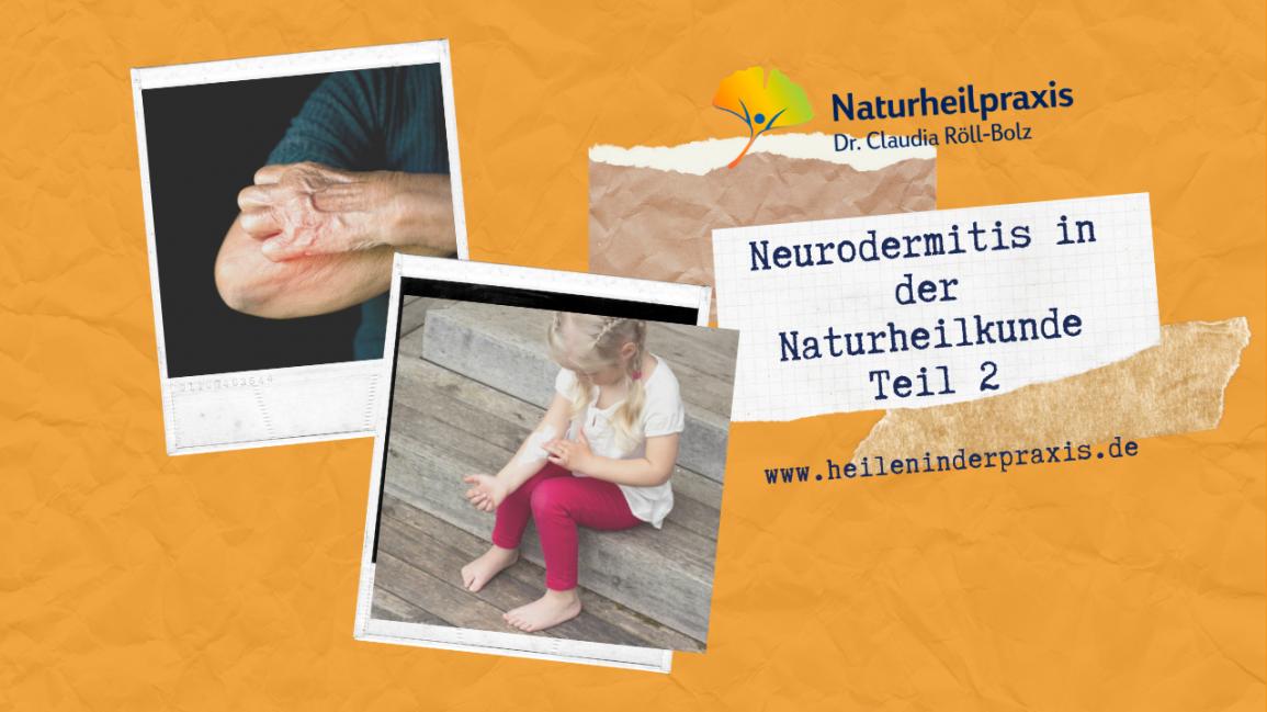 Neurodermitis in der Naturheilpraxis (Teil2)