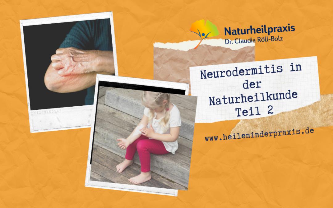 Neurodermitis in der Naturheilkunde (Teil 2)